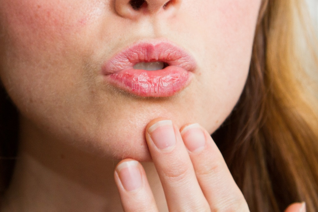 Simple Remedies for Chapped Lips
