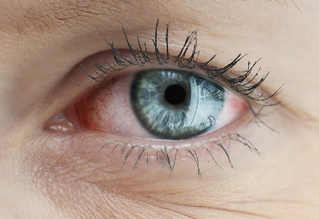 Main Causes of Eyelash Loss